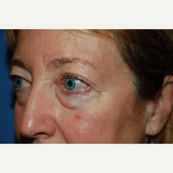 45-54 year old female treated with Eyelid Surgery before 3782115