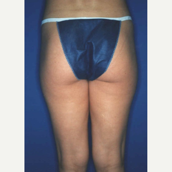 Liposuction after 3346115