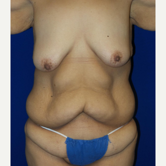 18-24 year old woman treated with Body Lift before 3253861
