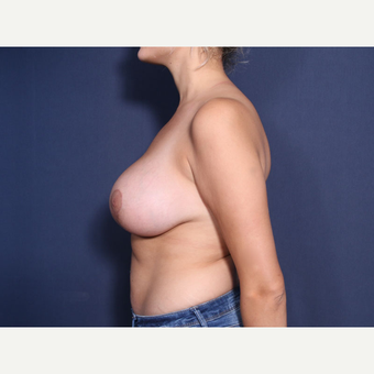 25-34 year old woman treated with Breast Lift with Implants (view 2 of 2) after 3769609