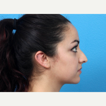 18-24 year old woman treated with Nose Surgery before 3366801