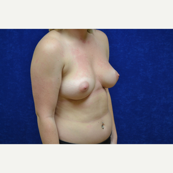 18-24 year old woman treated with Breast Augmentation before 3423508