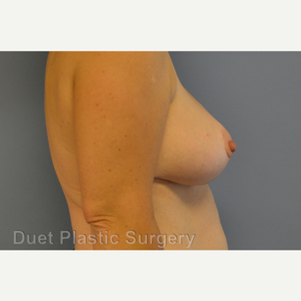 55-64 year old woman treated with Breast Reduction after 3350348
