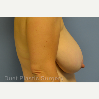 55-64 year old woman treated with Breast Reduction before 3350348