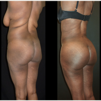 25-34 year old woman treated with Brazilian Butt Lift before 3717651