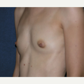 35-44 year old woman treated with Breast Implants before 3455305