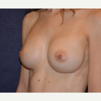 35-44 year old woman treated with Breast Implants after 3455305