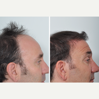 50 year old man treated with Hair Transplant before 3055169