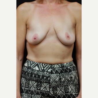 45 year old woman treated with Inspira Breast Implants before 2706333