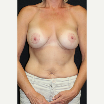 45 year old woman treated with Inspira Breast Implants after 2706333