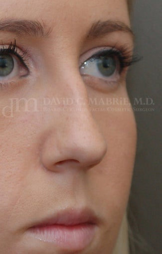 Rhinoplasty - Refine tip, Widen Dorsum before 134440