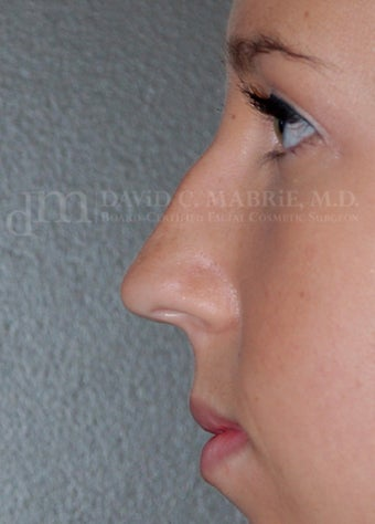 Rhinoplasty - Refine tip, Widen Dorsum 134440