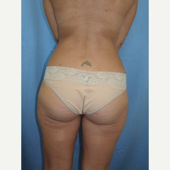 41 year old woman treated with Breast Fat Transfer and Breast Lift before 3585824