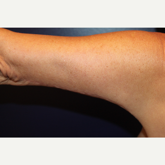 55-64 year old woman treated with Arm Lift after 3225194