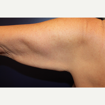 55-64 year old woman treated with Arm Lift before 3225194