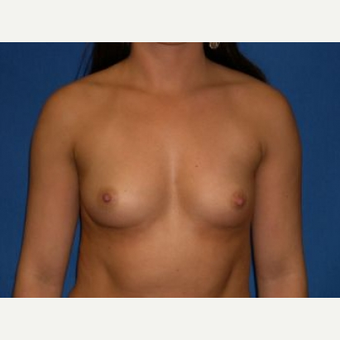 25-34 year old woman treated with Breast Augmentation before 3009254