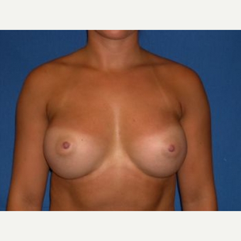 25-34 year old woman treated with Breast Augmentation after 3009254