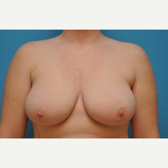 25-34 year old woman treated with Breast Reduction before 3240395