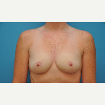 25-34 year old woman treated with Breast Reduction after 3240395