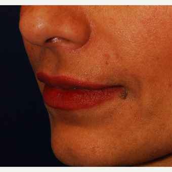 35-44 year old woman treated with Juvederm after 3625172