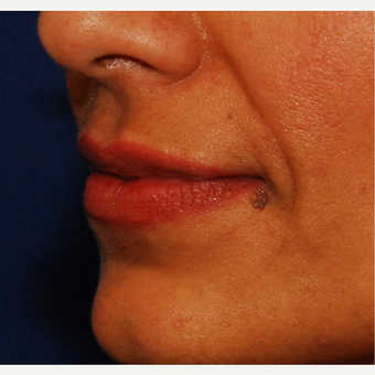 35-44 year old woman treated with Juvederm before 3625172