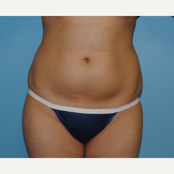 26 year old liposuction of abdomen and flanks before 3142623