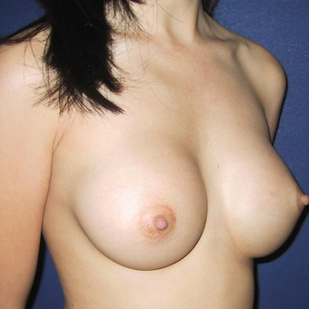 25-34 year old woman treated with Breast Augmentation after 3131777