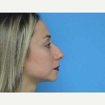 35-44 year old woman treated with Rhinoplasty before 3826209
