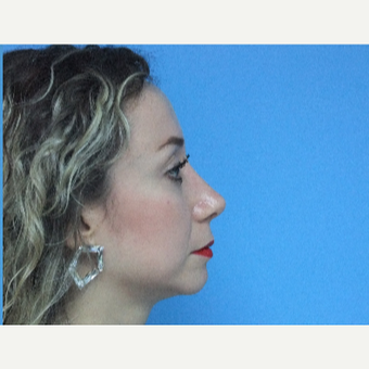 35-44 year old woman treated with Rhinoplasty after 3826209