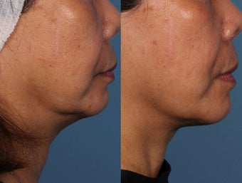 Ultherapy Treatment before 1039853