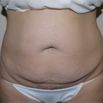 45-54 year old woman treated with Tummy Tuck before 3289989