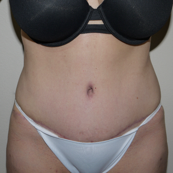 45-54 year old woman treated with Tummy Tuck after 3289989