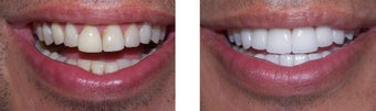 43 year old male treated for failed ,poorly placed porcelain veneers .