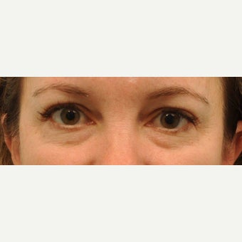43 year old patient had Restylane to reduce under eye bags before 2220363