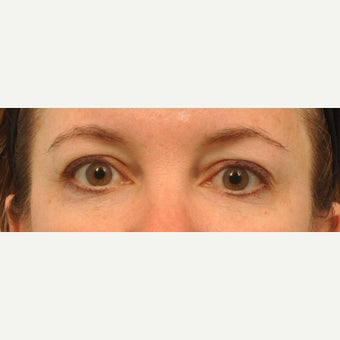 43 year old patient had Restylane to reduce under eye bags after 2220363