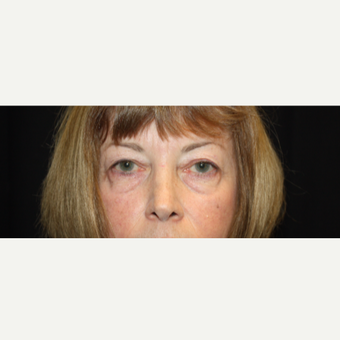 55-64 year old woman treated with upper eyelid and lower eye bag treatment before 3325297