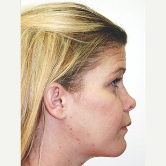 25-34 year old woman treated with Orthognathic Surgery 1667477