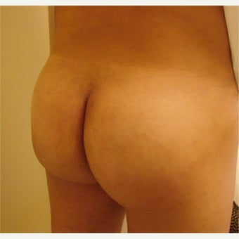 45-54 year old man treated with Buttock Implants after 1714100