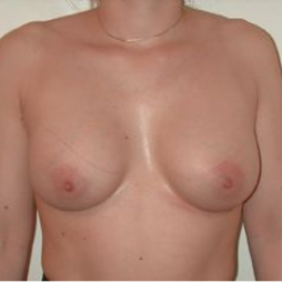 Breast Augmentation after 3720747