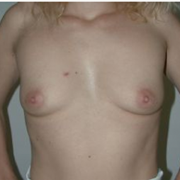 Breast Augmentation before 3720747
