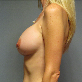 Breast Implants after 3033330