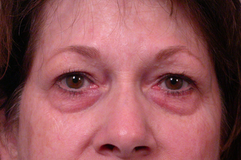 Eyelid Surgery before 302479