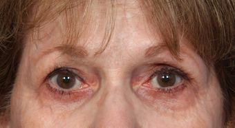 Eyelid Surgery after 302479