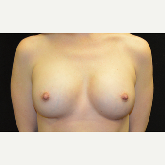35-44 year old woman treated with Breast Implants after 3181840