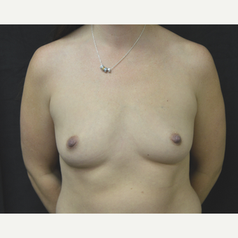 35-44 year old woman treated with Breast Implants before 3181840
