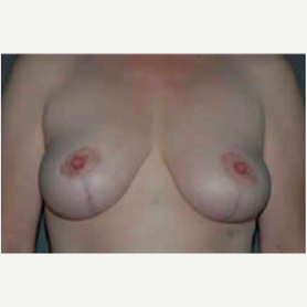 Breast Lift after 3058144