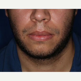 25-34 year old man treated with FUE Hair Transplant for Beard Restoration before 3725236