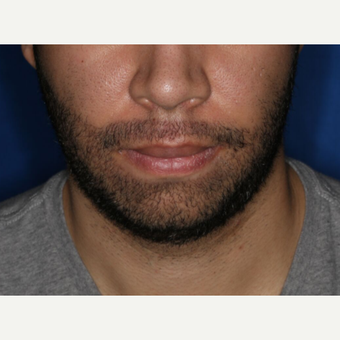 25-34 year old man treated with FUE Hair Transplant for Beard Restoration after 3725236