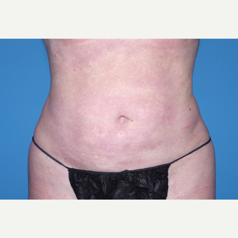35-44 year old woman treated with Liposuction after 3644263