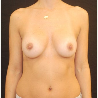 35-44 year old woman treated with Breast Implants after 1687141